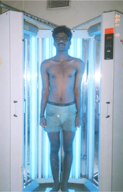 UVB Phototherapy