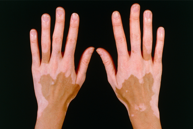Surgical management of acral vitiligo