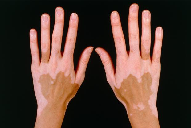 Surgical management of acral vitiligo