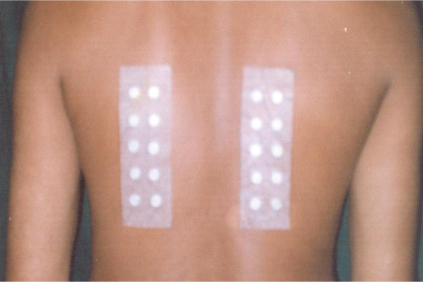 Patch test applied in 2 strips on upper back