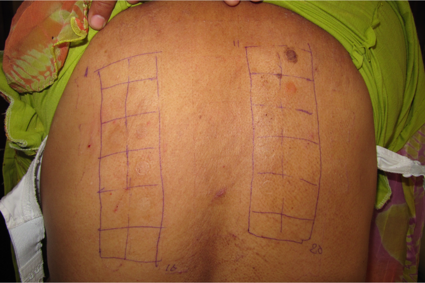 Patch test removed after 48 hours
