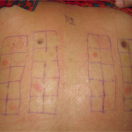 Patch test applied in duplicate for a photopatch test