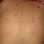 Patch test in duplicate along with MED calculation