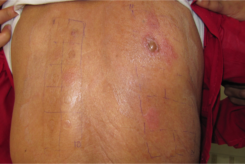 Severe positive (bullous) reaction to patch test