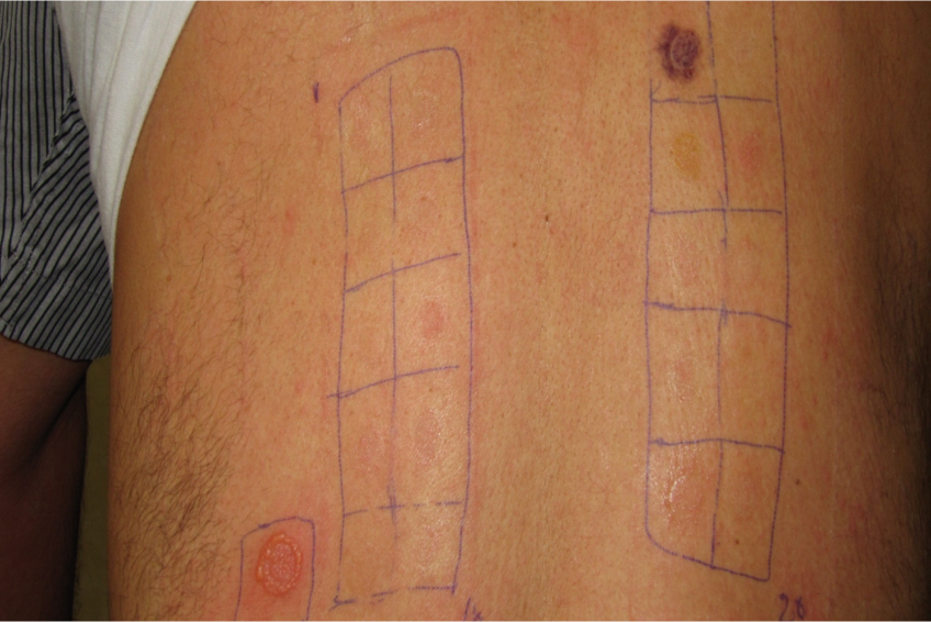 Severe positive reaction to patch test