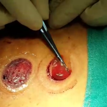 Blister being Dissected out