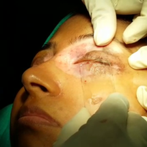blisters applied to the eyelid