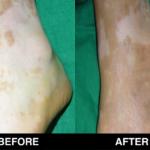vitiligo 20