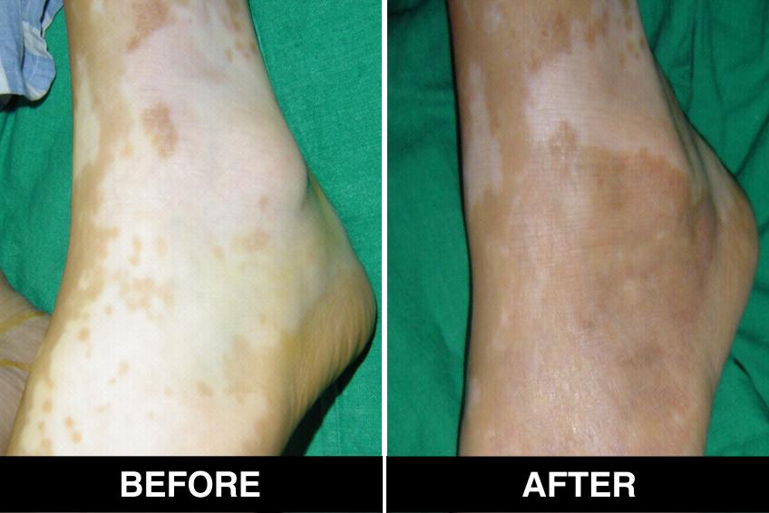 White Patches White Spots Vitiligo Treatment In Delhi