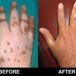 vitiligo-31