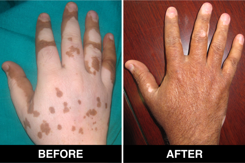Melanocyte Cell Transplantation or MCT as Vitiligo Treatment
