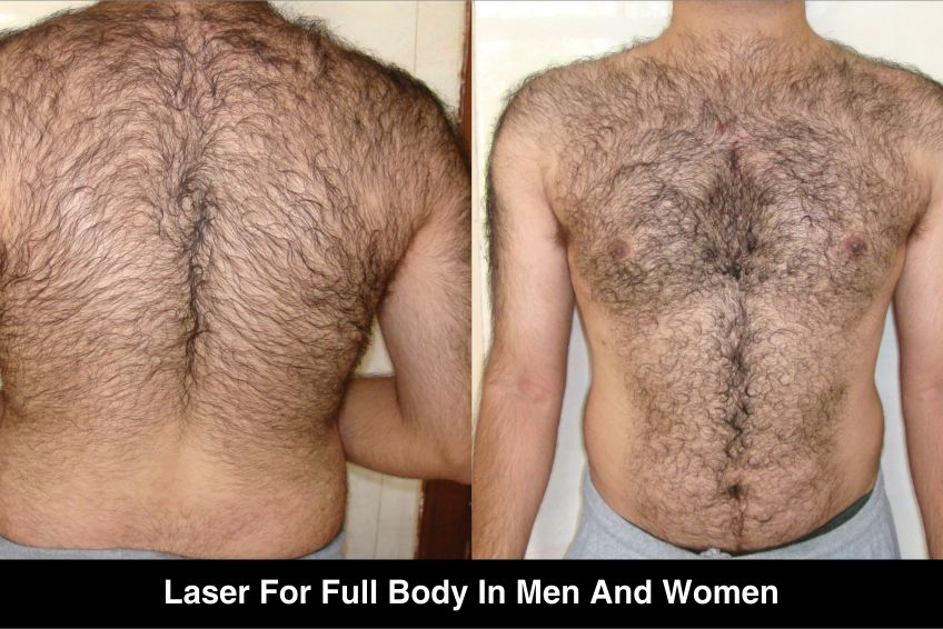 Laser Hair Removal Treatment Delhi Hair Removal Specialist In