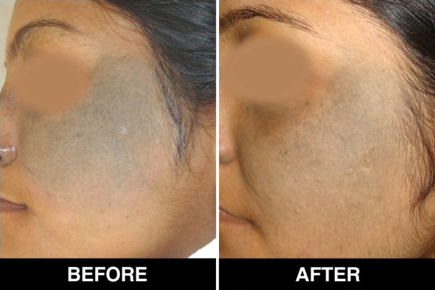 Birthmarks Removal Treatment Clinic in Delhi-NCR