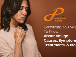 Everything You Need to Know About Vitiligo