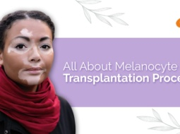 All About Melanocyte Cell Transplantation Procedure