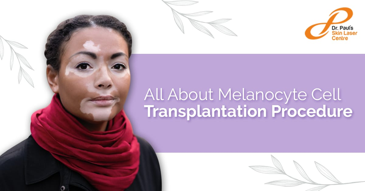 All About Melanocyte Cell Transplantation Procedure