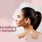 Is Vitiligo Hereditary or Genetic