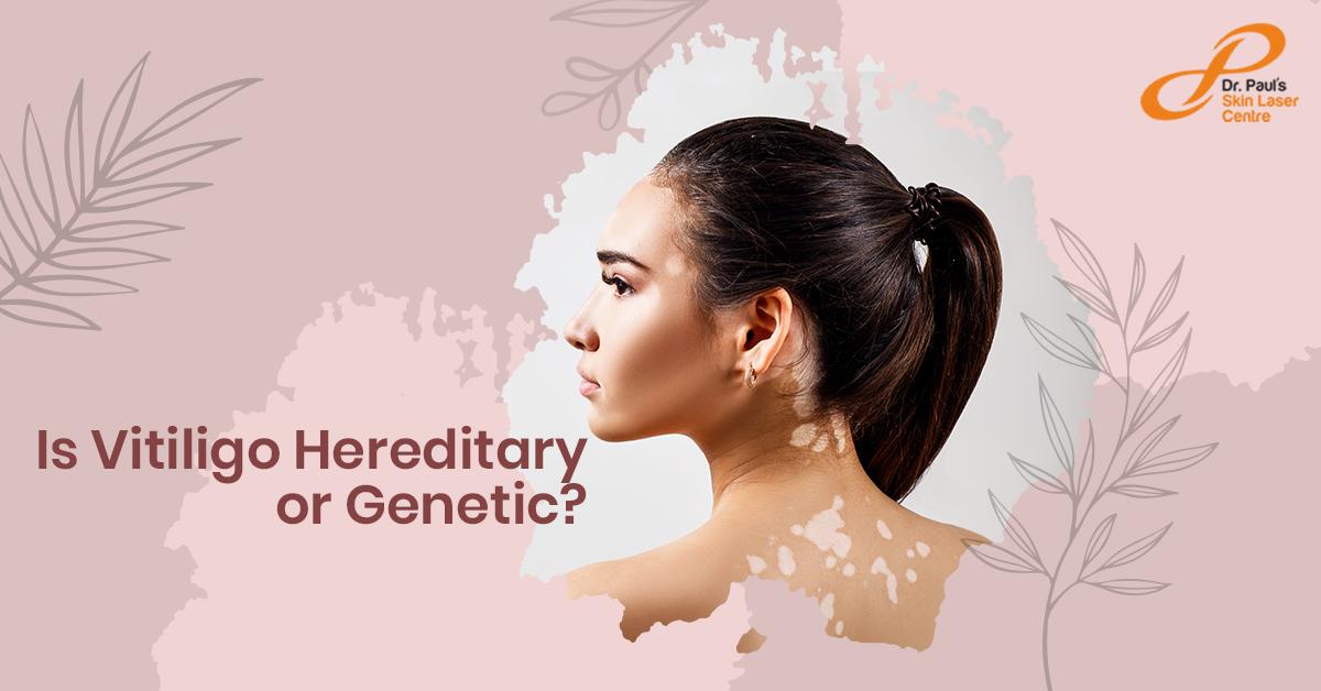 Is Vitiligo Hereditary or Genetic
