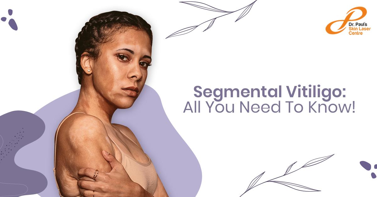 Segmental Vitiligo: Causes, Symptoms, Treatment